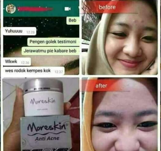 Testimonial Moreskin Anti Acne